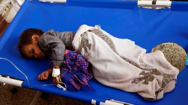 Jemen – Shpallet gjendje e jashtëzakonshme për të luftuar epideminë e kolerës   TRT  Shqip