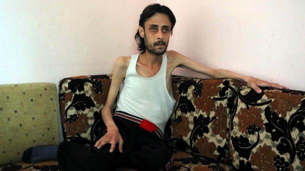 Očaj civila pod opsadom u Halepu: Ma kakvi lijekovi, nemamo ni hljeba