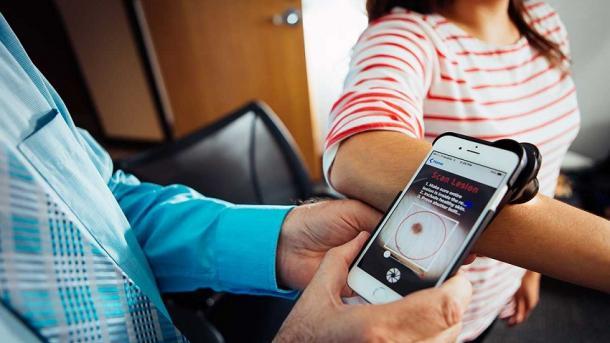 Inteligjenca artificiale identifikon kancerin e lëkurës sikurse mjekët ekspertë | TRT  Shqip