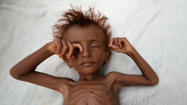 OKB – Prej fillimit të konflikteve në Jemen e deri më sot kanë humbur jetën 7.500 fëmijë | TRT  Shqip